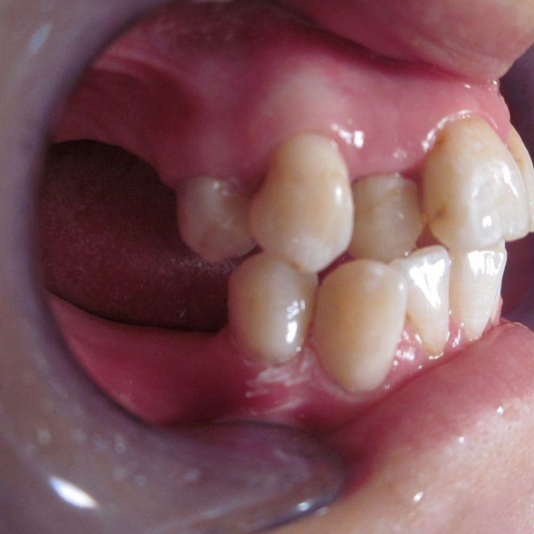 Przed leczeniem ortodontycznym