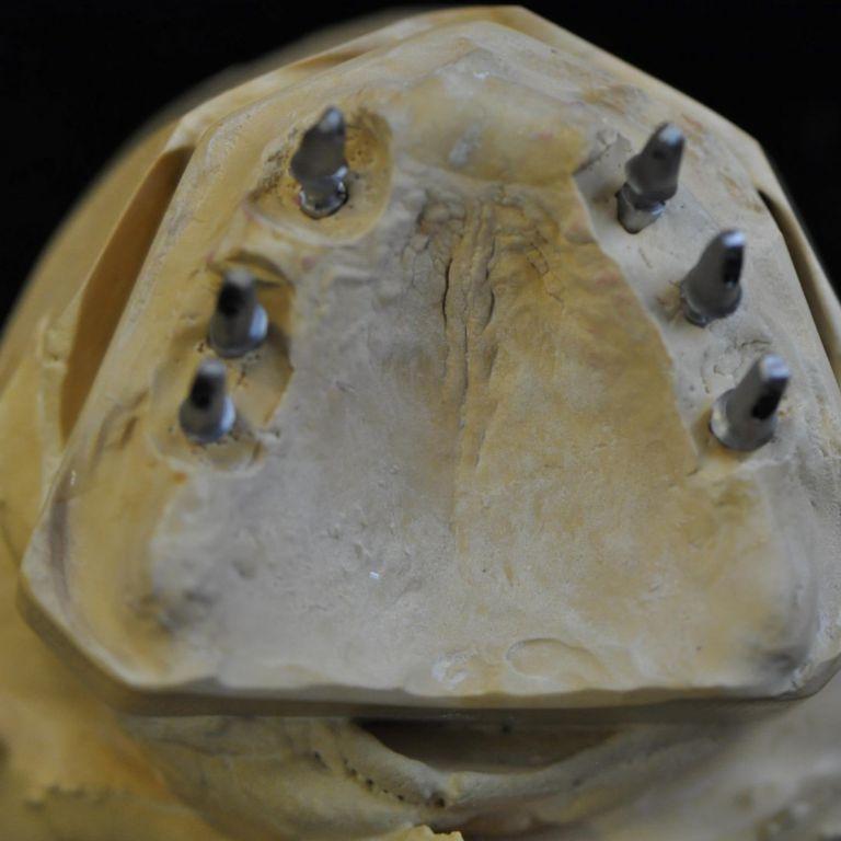 Po wszczepieniu implantów i zacementowaniu pracy protetycznej