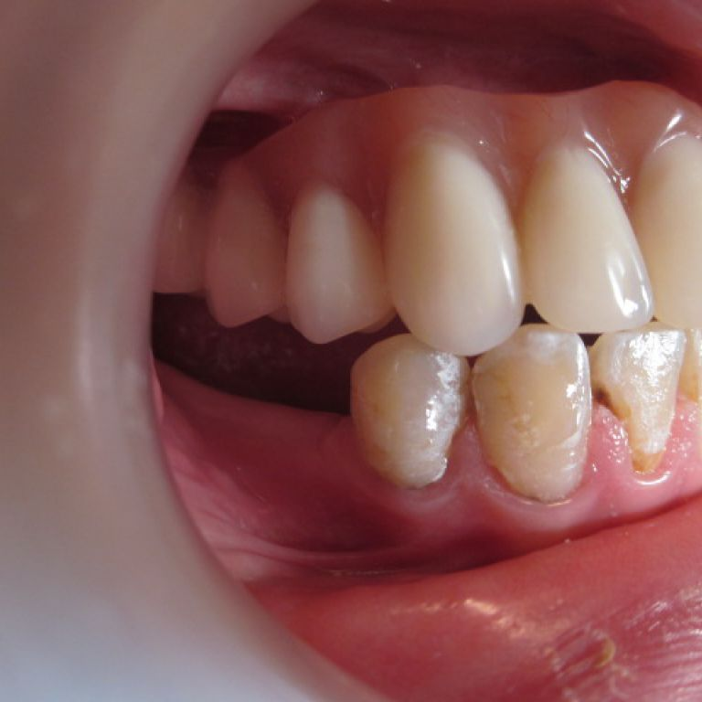 Po leczeniu ortodontyczno-protetyczno-implantologicznym