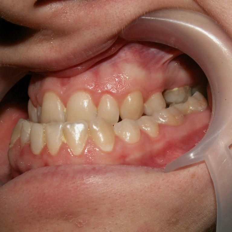 Przed leczeniem ortodontyczno-chirurgicznym