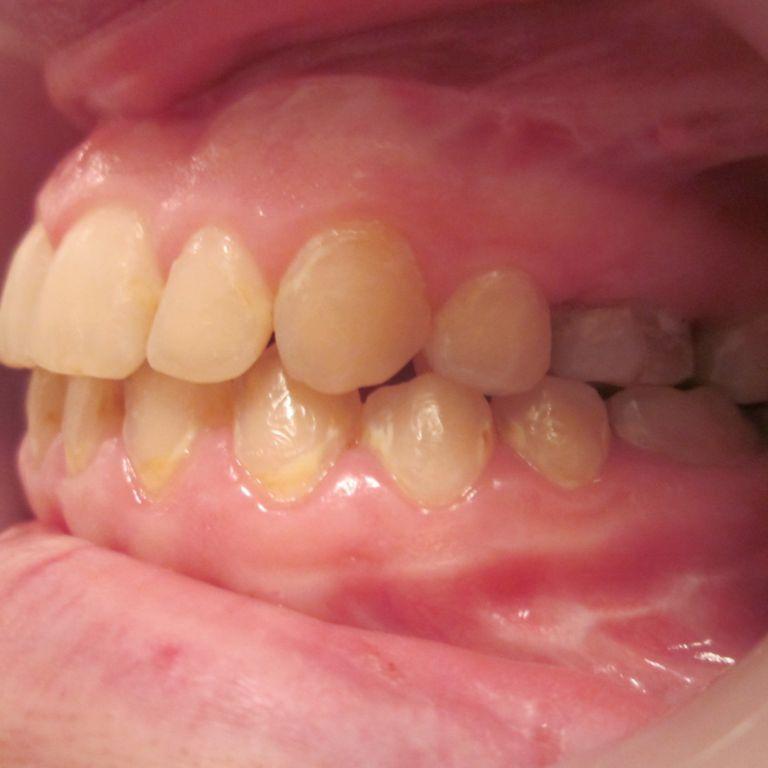 Po leczeniu ortodontyczno-chirurgicznym