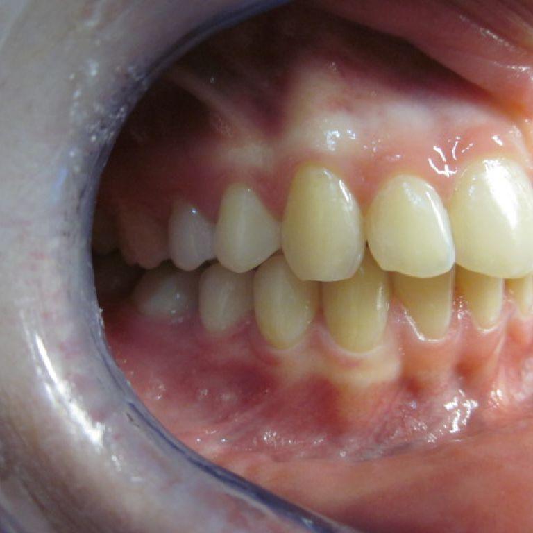 Po leczeniu ortodontycznym